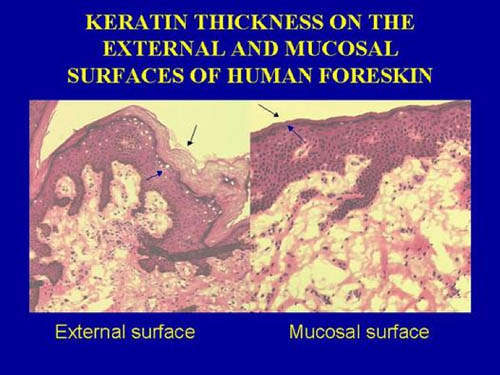 Hiv through the uretha